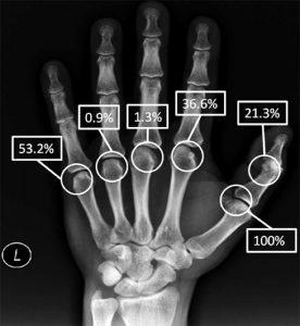 Schema delle percentuali di presenza delle ossa sesamoidi della mano