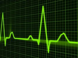 Alla scoperta degli esami migliori per evitare l'ischemia miocardica